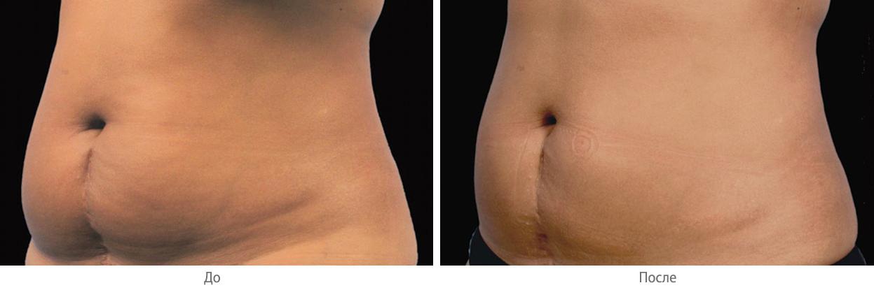 Фото до и после криолиполиза на аппарате Zeltiq № 2