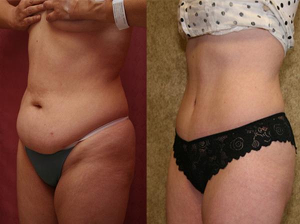 Фото до и после курса процедур мезотерапии живота №3
