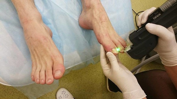 Лечение грибка ногтей лазером