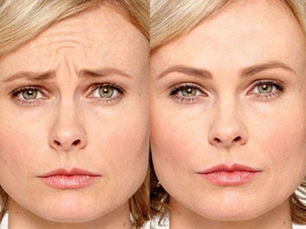 Фото до и после процедуры с использованием Диспорта