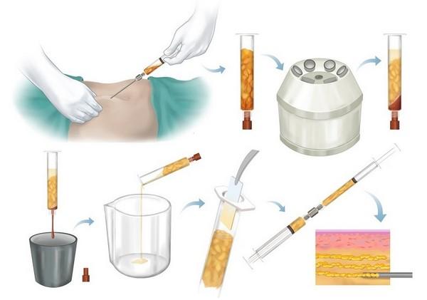 Материал обогащается тромбоцитами перед введением