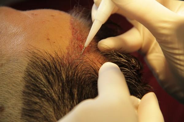 Главная процедура в борьбе с алопецией – трансплантация волос