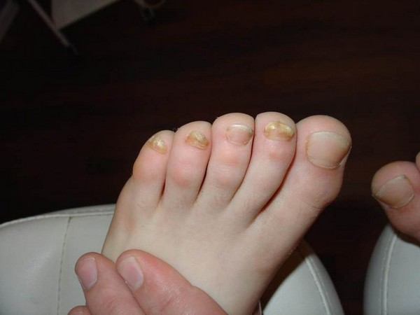 Если ноготь стал более толстым или тонким, стоит обратить на это внимание, сходить на осмотр к врачу