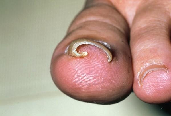 Палец, на котором врос ноготь, постоянно болит