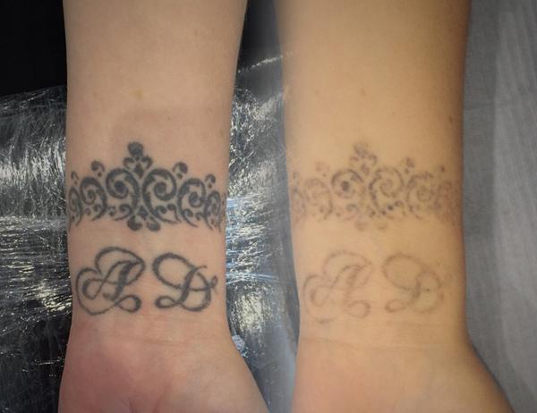 Пациенты подтверждают, что лазерное удаление татуировок действительно эффективно