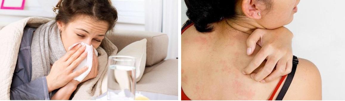 Любые виды лифтинга противопоказаны при заболеваниях кожи и инфекционных поражениях