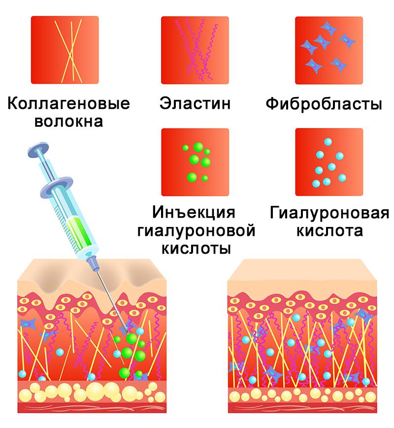 Механизм действия гиалуроновых филлеров