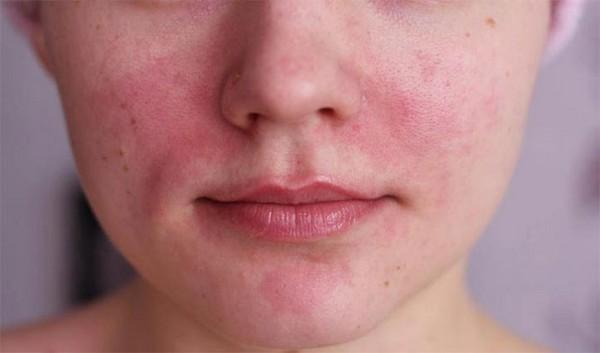 При аллергии процедуру не проводят