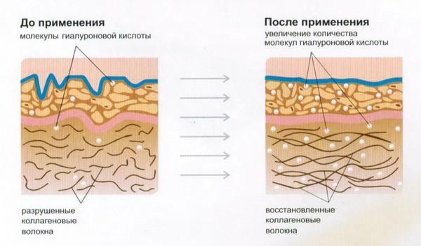 Препарат помогает естественной выработке коллагена