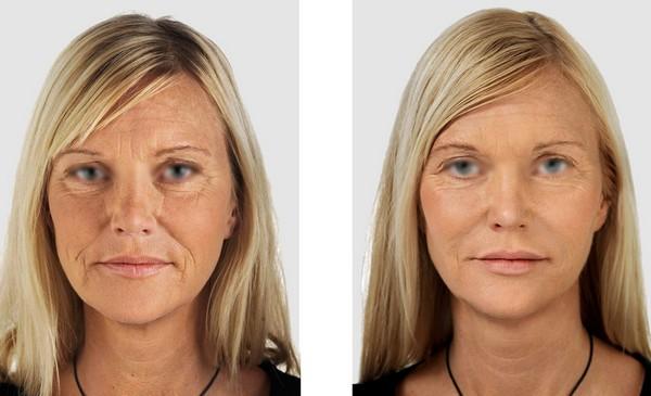 Благодаря таким процедурам можно значительно улучшить состояние кожи