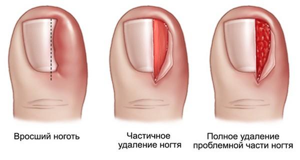 Иногда ноготь полностью удаляют, но такой метод предполагает наложение швов и сильный дискомфорт для человека