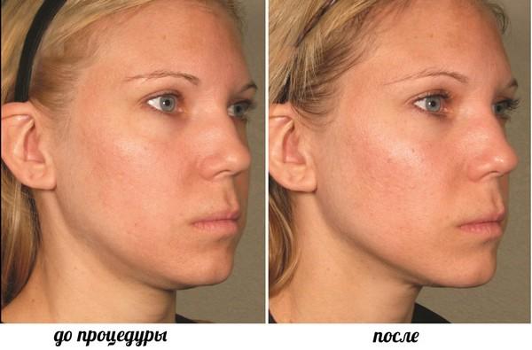 Итог процедуры – здоровая кожа