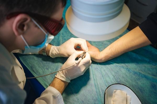 С течением времени метод удаления бородавок лазером совершенствовался, и сейчас стал наиболее популярным