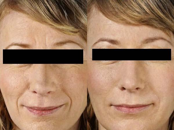 Фото до и после процедуры с использованием Нейронокса