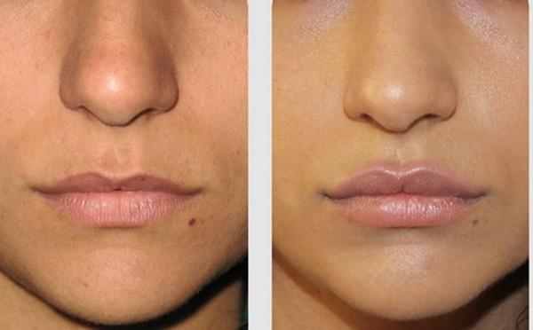Делают и липофилинг губ