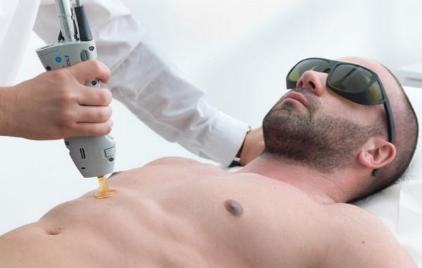 С помощью лазера удаляют волосы и у мужчин