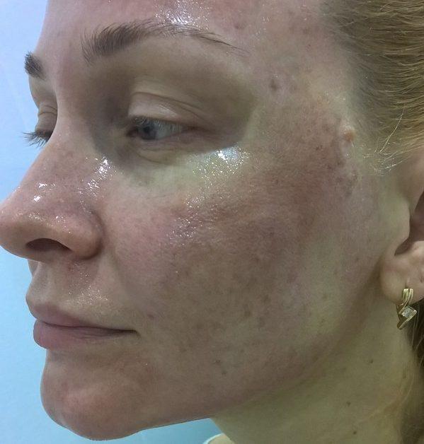 По окончанию процедуры кожа краснеет