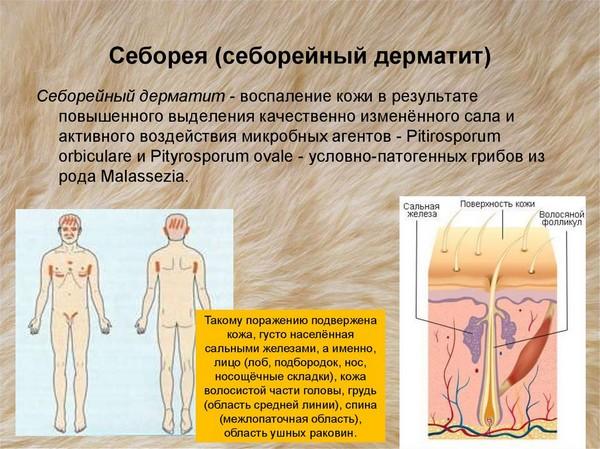 При наличии определенных заболеваний кожи нужно проводить процедуру чаще