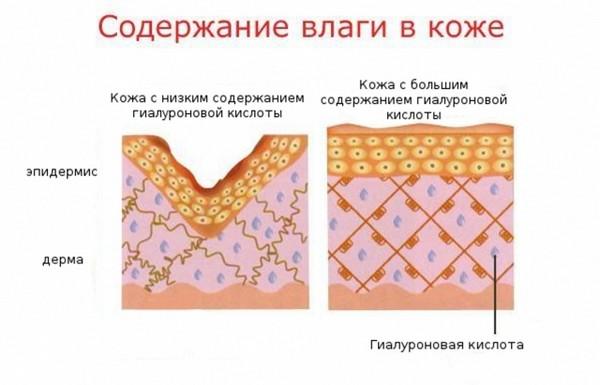Гиалуроновая кислота крайне необходима коже