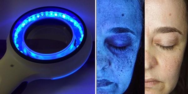 Первое, что делается перед самой процедурой, – очистка кожи с использованием лампы Вуда