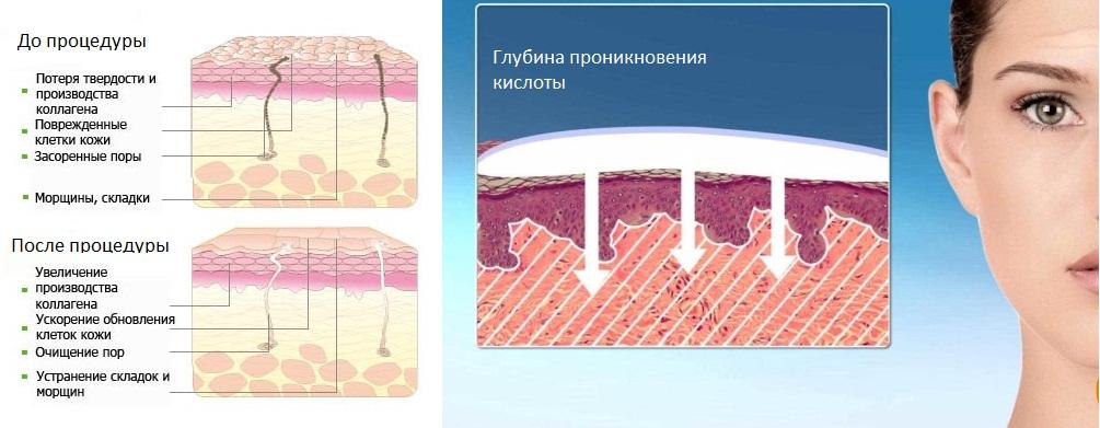 Механизм действия пируватного пилинга