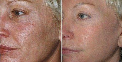 После эрбиевого пилинга кожа становится лишь лучше
