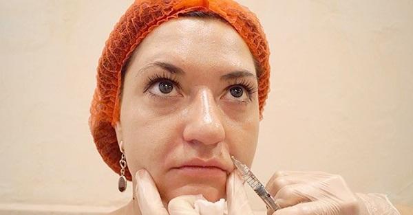 Коррекция носогубных складок обычно требуется после 35 лет