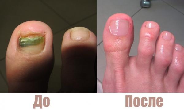 Фото до и после лечения грибка ногтей лазером №2
