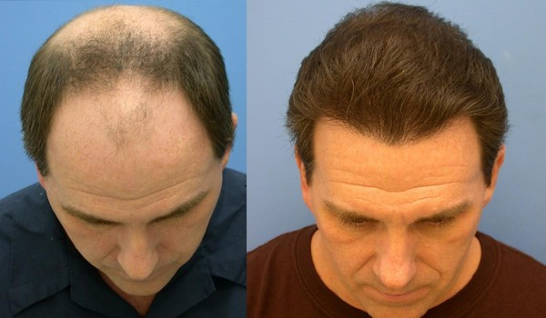 Фото до и после трансплантации волос методом HFE