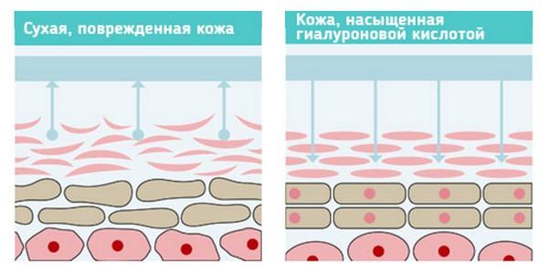 У использования гиалуроновой кислоты много преимуществ