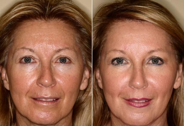 Фото до и после термолифтинга №1