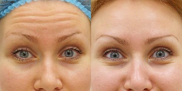 Фото до и после уколов рефайнекса №1