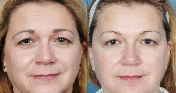 Фото до и после курса процедур лимфодренажного массажа лица №2