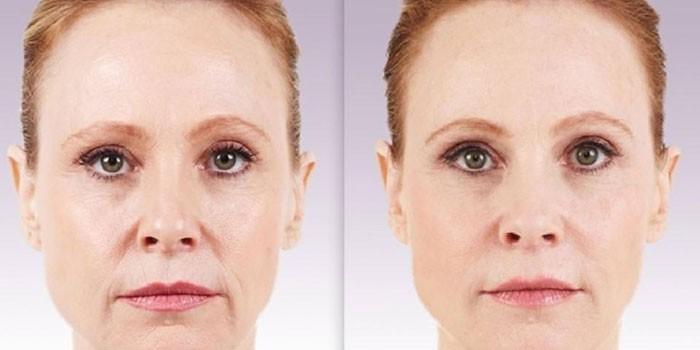 Фото до и после контурной пластики носогубных складок №1