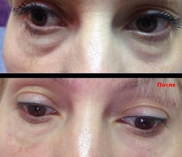 Часто липофилинг век проводят вместе с липофилингом слезной борозды