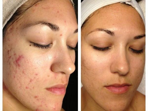 С помощью такой процедуры можно улучшить состояние кожи