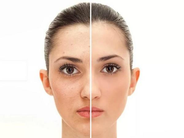 После процедуры кожа лица становится лучше