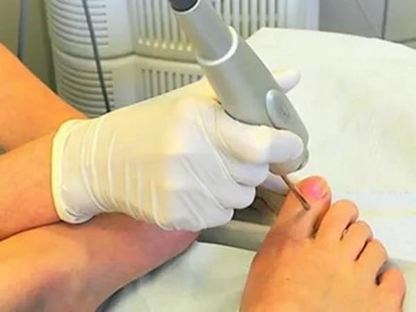 Удаление грибка ногтя производится курсом