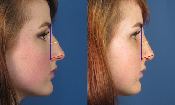 Такое исправление формы носа является отличным решением