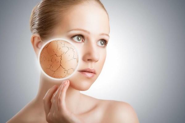 Есть признаки, которые ясно дают понять, как выглядит сухая кожа