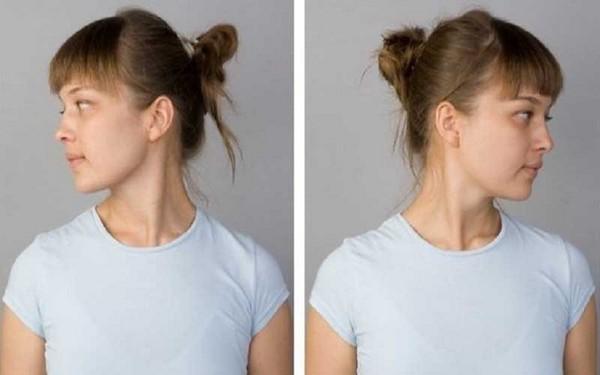 Правильные повороты головы могут помочь скорректировать овал лица