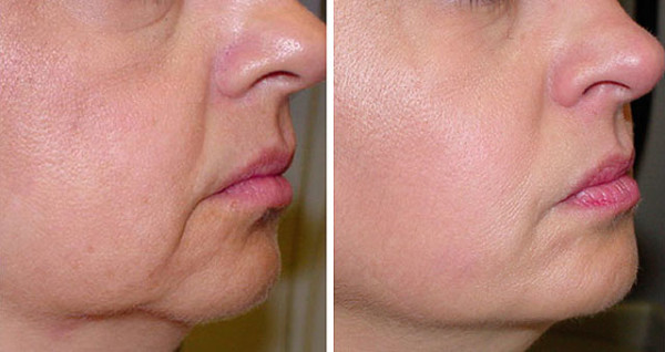 Фото до и после процедуры термажа №2