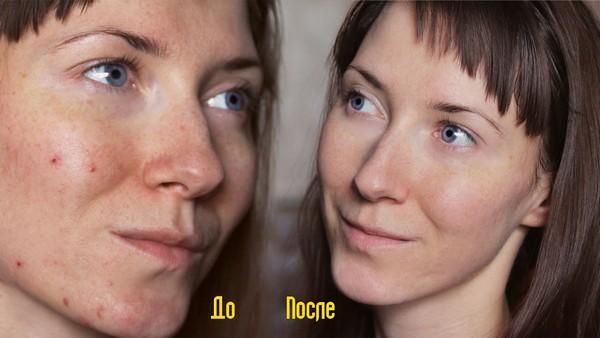 Благодаря такой процедуре можно омолодить кожу лица