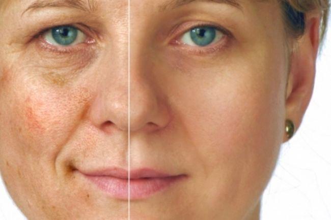После пилинга кожа осветляется и разглаживается, становится более упругой
