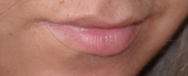 Из-за неправильной работы с филлером губы могут смотреться непропорционально