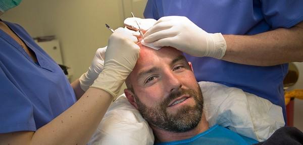 Можно добиться быстрой адаптации пересаженных волос