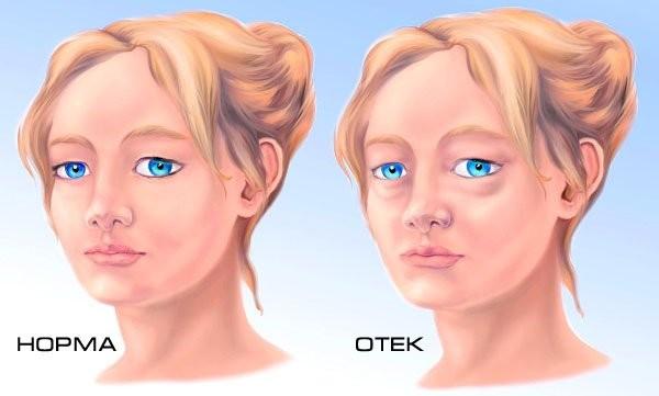Возможен отек кожи лица