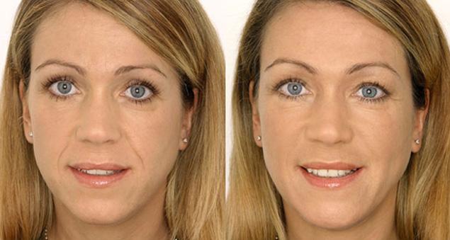 Фото до и после контурной пластики носогубных складок №2