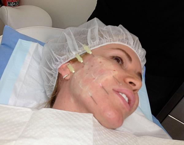 Использование нитей из золота – прекрасная альтернатива операционным методам возвращения молодости коже
