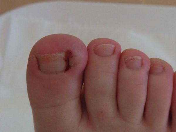 Проблема вросшего ногтя встречается довольно часто